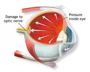 Glaucoma care